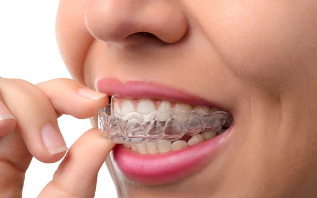 Schienentherapie Ludwigsburg Zahnarzt